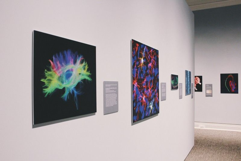 Paintings Attached To A Wall With Brain Studies
